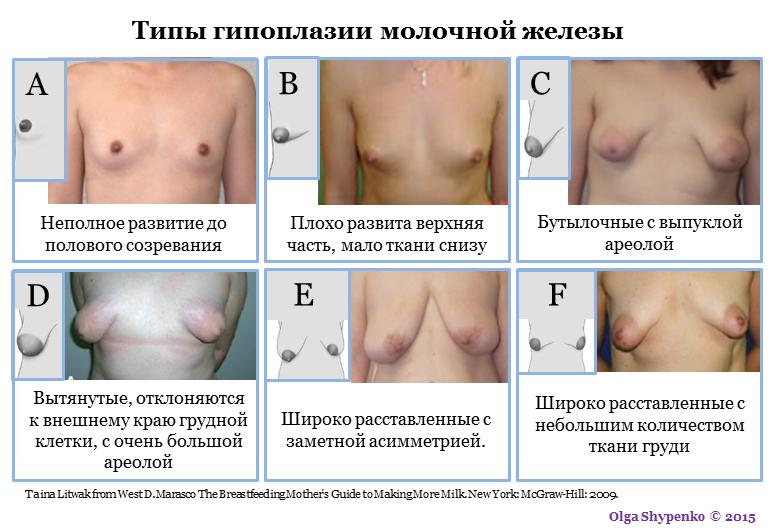 Типы гипоплазии груди