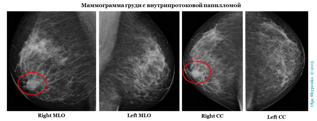 http://radiopaedia.org/cases/intraductal-papilloma-4